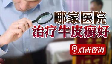 郑州牛皮癣医院治疗好