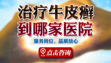 郑州银屑病研究所收费高吗?