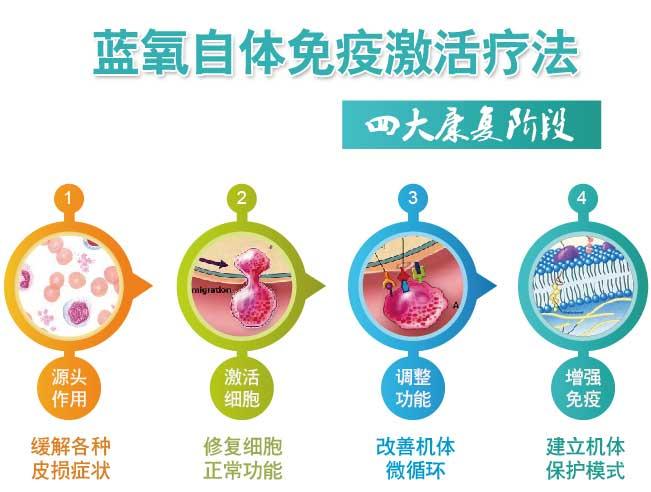 蓝氧自体免疫激活疗法——四大康复阶段