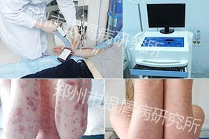 蓝氧自体免疫激活疗法抗复发体系-3.jpg